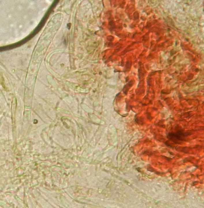 ellipsoid to clavate spores of Patinellaria
