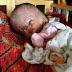 Bayi Menderita Penyakit 'Hydrocephalus' Memerlukan Bantuan Kewangan