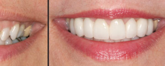 Dentist in Maple Grove MN | What is Your Smile Saying About You?