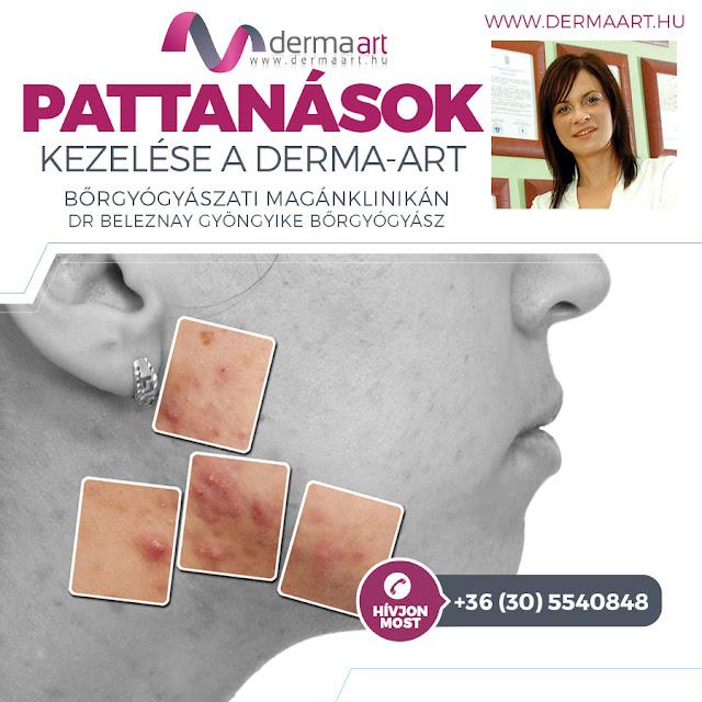 http://www.dermaart.hu/szolgaltatasok/altalanos-borgyogyaszat/acne-kezeles-megoldasok-pattanasos-borre
