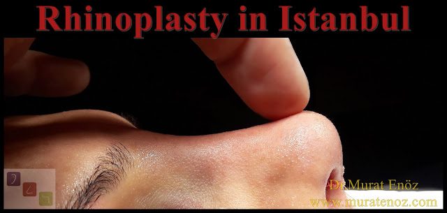Rhinoplasty in Istanbul - Rhinoplasty in Turkey - Nose job İstanbul