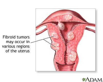 kecutkan fibroid