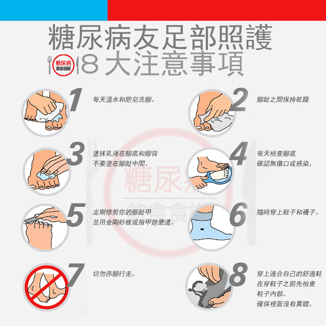 糖尿病友足部照護,請留意8大注意事項