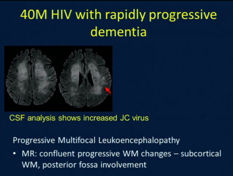 Rsna Structural Imaging For Dementia