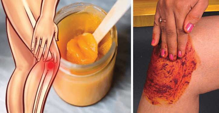 This Recipe Goes Viral On Social Media; It Will Heal Your Knees And Rebuild Your Bones And Joints