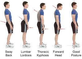 Actividad Física y Hábitos Saludables  MALAS POSTURAS EN POSICIÓN DE PIE e670da878ef3