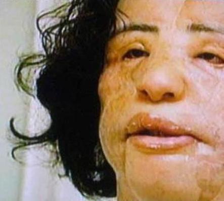 Cosmetic Surgery Fail Gossip Ghirl