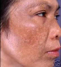 dark spots on face and skin in urdu