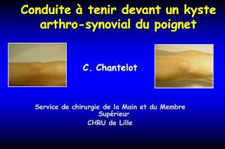 Conduite à tenir devant un kyste arthro-synovial du poignet .pdf