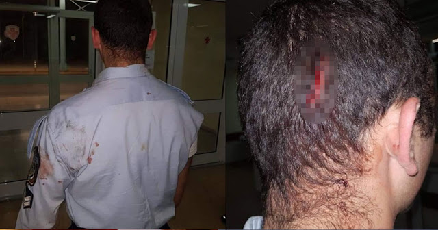 Ρομά έδειραν Έλληνες ασυνομικούς και τα τραύματα πραγματικά σοκάρουν