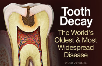 an introduction to the issue of tooth decay Community water fluoridation tooth decay is one of the community water fluoridation website j public health dent 198949(special issue):331–337.