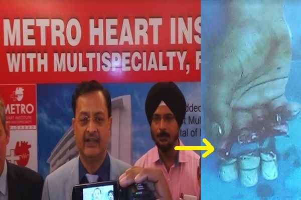 faridabad-metro-hospital-re-implant-3-fingers-rare-surgery-news