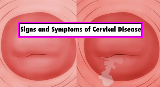 Women Needs To Observe 7 Warning Signs Of Cervix Disease