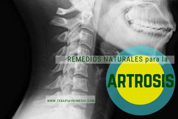 Remedios naturales para la artrosis y las articulaciones