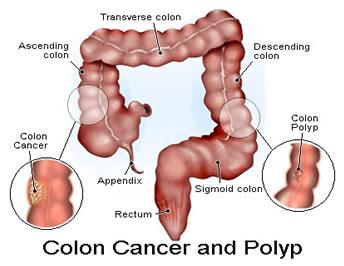 Beberapa Gejala-Gejala Kanker Usus Besar   REFERENSI PENYAKIT