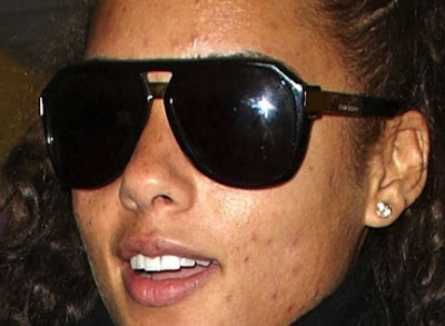 alicia keys acne