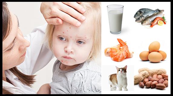 Mengenal Apa Itu Alergi Pada Anak Agar Lebih Mudah Untuk Mengatasi Alergi
