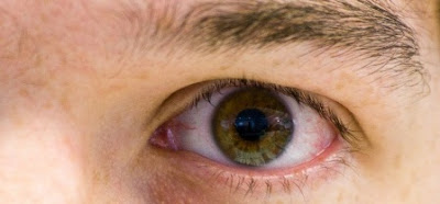Dry Eye Symptoms, Causes and Remedy