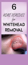 Remove Whiteheads Easily By Following These 6 Home Remedies !