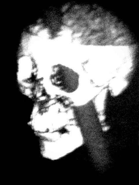 Cranio di Phineas Gage con sbarra