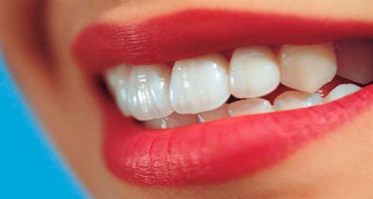 بالفيديو .. 4 خلطات منزلية تمنحك أسنانا بيضاء كالثلج