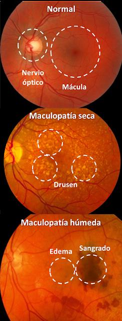 Maculopatía seca y húmeda