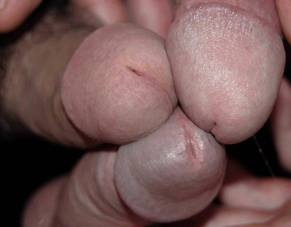 gay cock with big cockheads jpg 422x640