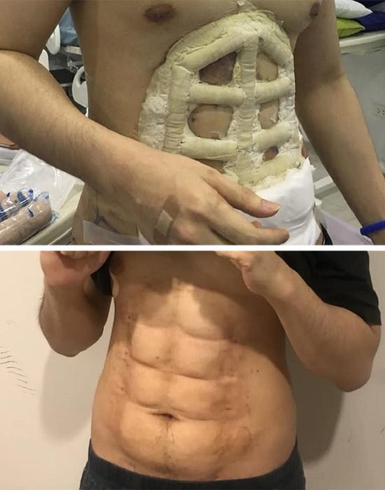 Barriga tanquinho Procedimento estético - lipoaspiraçao - antes depois