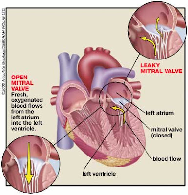 Understanding Williams Syndrome: Mitral valve prolapse