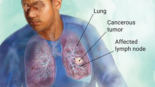 Waspadai Gejala Kanker Paru Berikut Ini