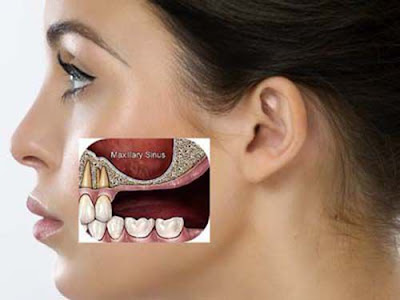 biểu hiện viêm xoang hàm