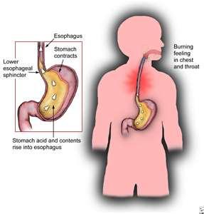 Acid Reflux Type Pain Thyroid