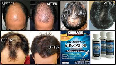 Serum Obat Penumbuh Rambut Botak dan Rontok Parah Kirkland Signature