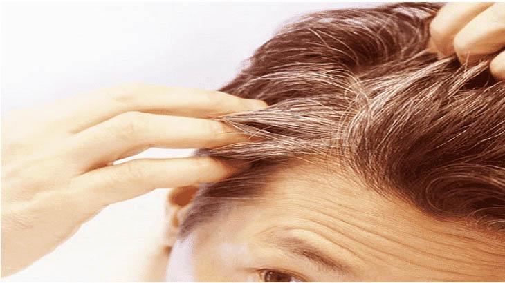 7 أسباب لظهور الشعر الأبيض عند الشباب في سن مبكر