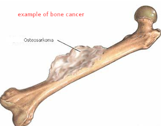 What is bone cancer treatments