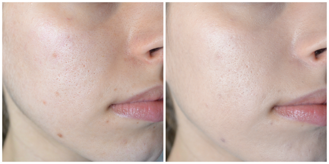 before and after, less redness and pigmentation, brightening, but not much coverage