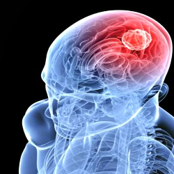 Maio é o mês de prevenção do câncer cerebral