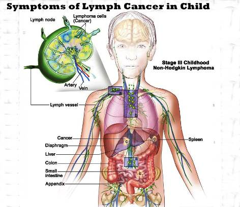 hodgkins-lymphoma-symptoms-child