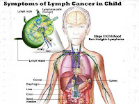 Symptoms of Lymph Cancer in Child