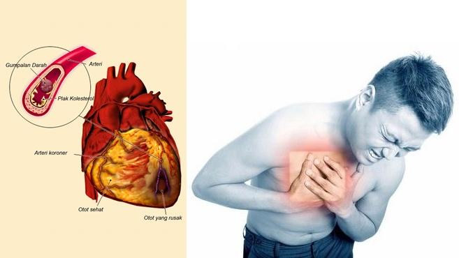 7 Gejala Penyakit Jantung Koroner Yang Perlu Di Waspadai