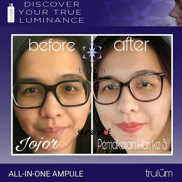 Jual Trulum Serum Anti Aging Di Tanjung Priok