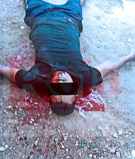 Ataque a balazos deja un muerto y herido de gravedad