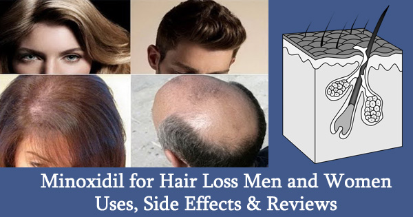 Does minoxidil have sexual side effects
