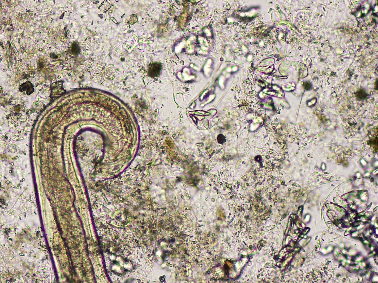 Creepy Dreadful Wonderful Parasites: Case of the Week 430  |Beautiful Parasites