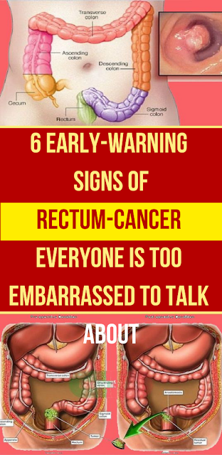 6 Early-Warning Signs of Rectum-Cancer Everyone is TOO Embarrassed to Talk About