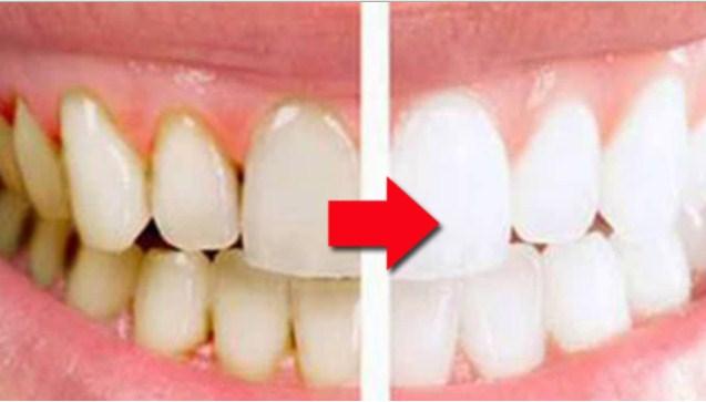 Cara Menghilangkan Karang Gigi Sendiri Secara Aman Dan Alami