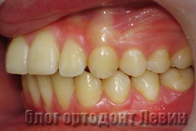 Правильный прикус после ортодонтического лечения