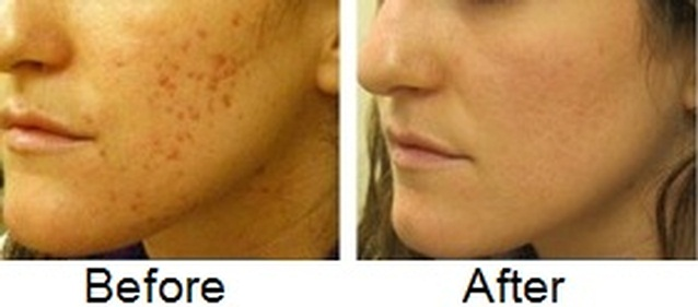 A Powerful Cream To Get Rid Of Acne Scars Quickly