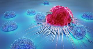 Kolon (Bağırsak) Kanser Anatomisi