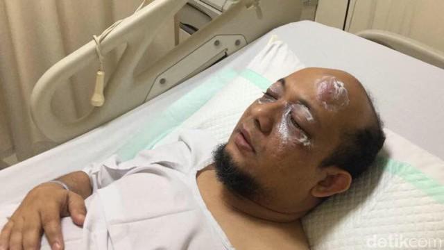 Cerita Ketua RT soal Penyiraman Air Keras terhadap Novel Baswedan